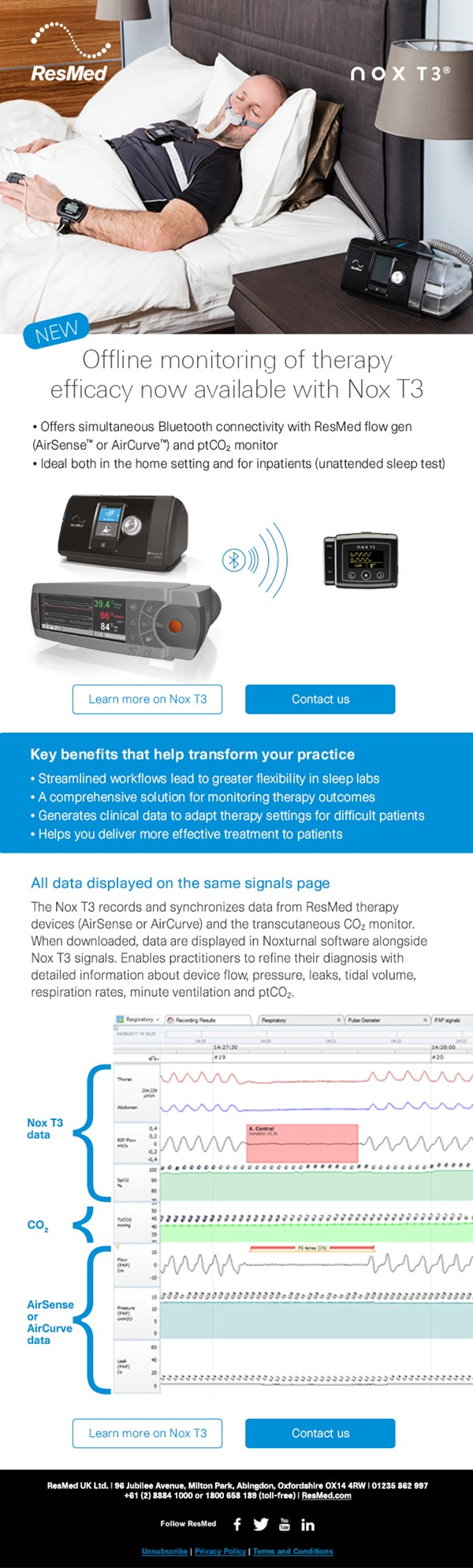 Therapy Efficacy Monitoring with Nox T3 - Nox Medical